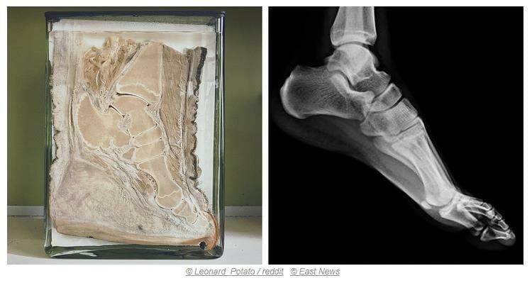 İnsan ayak yapısıyla fil ayak yapısı hemen hemen aynıdır